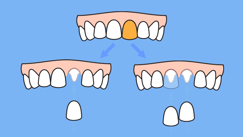 Do you need to replace adjacent teeth if you need one crown or veneer on your upper central tooth due to carries, discoloration, or chipping of the crown?