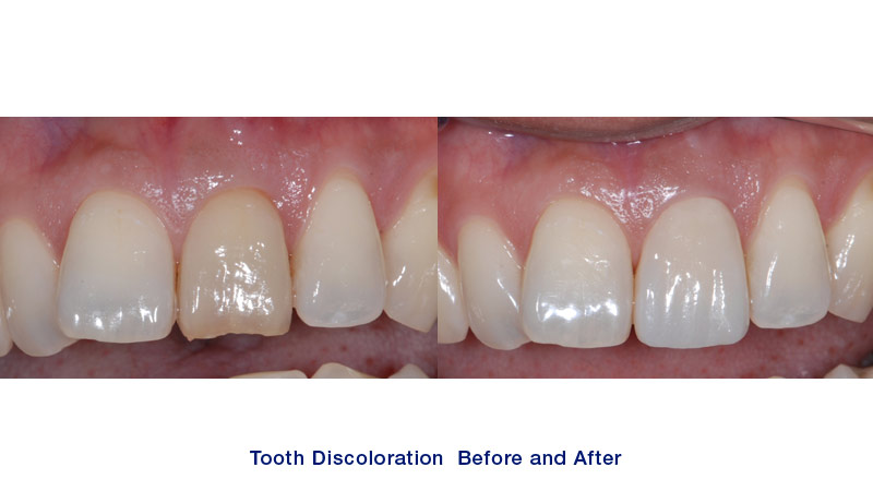 One upper central tooth on your right side has discoloration, and it is also chipped at the tip of the crown after root canal treatment. This tooth was crowned in our office.