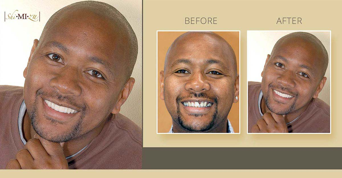 cosmetic dentistry missing teeth before after