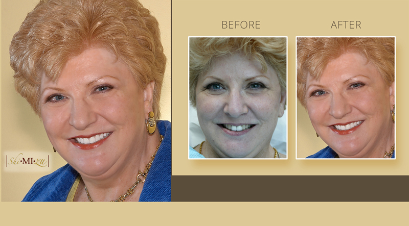 smile makeover discolored teeth