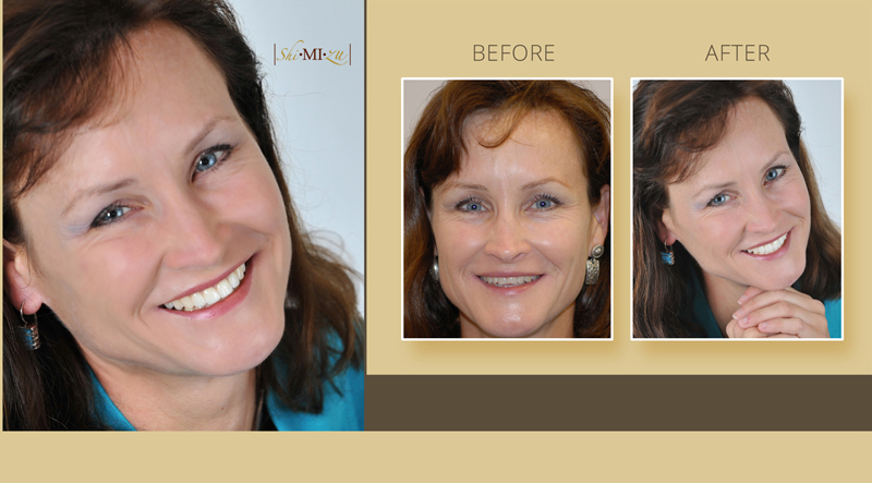 smile makeover with tooth bonding and porcelain veneers