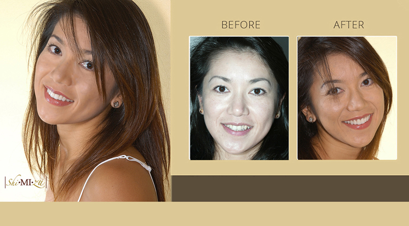 smile makeover staighten teeth in 3 visits