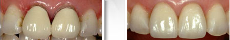 teeth restorations with crowns case 1
