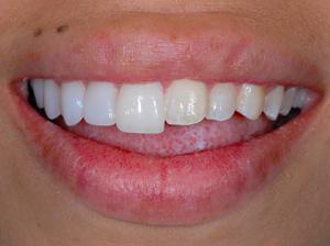 Non Prep Veneers Veneers For Teeth Lumineers Teeth